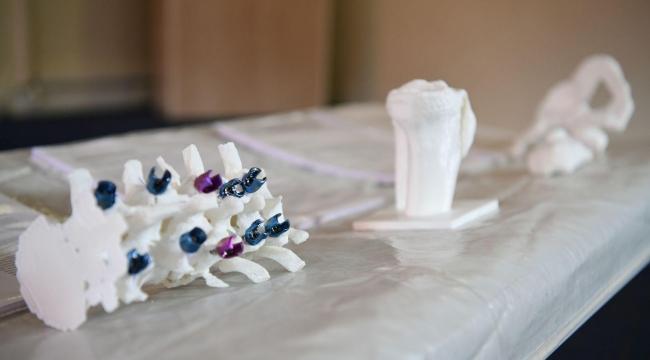 EÜ'de ortopedik tedavide yeni bir model geliştirildi